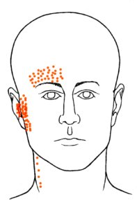 Tempo-Mandibular Joint Pain