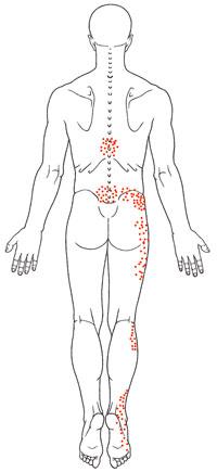 Low Back Pain & Sciatica.