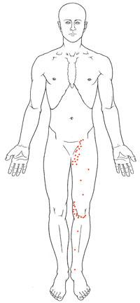 Arthritis of the Hip.